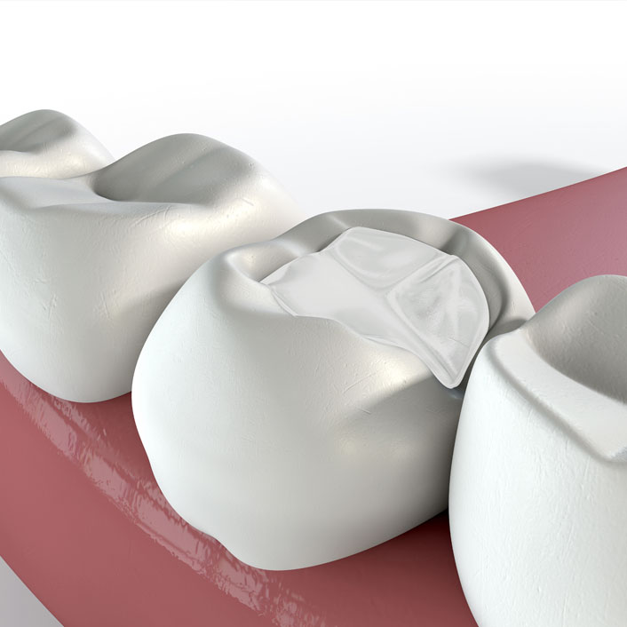 Fillings and Crowns - Dental Services
